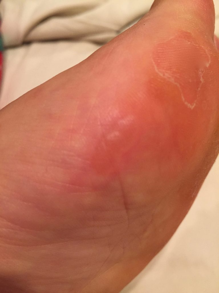 Old blister is healing while new blister is forming!!!